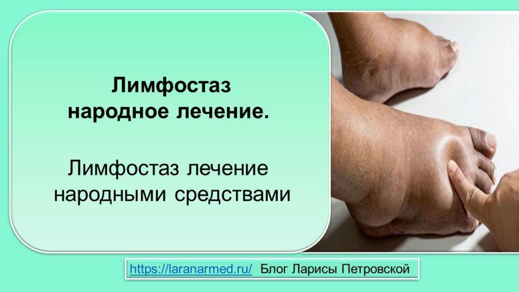 Лимфостаз народное лечение