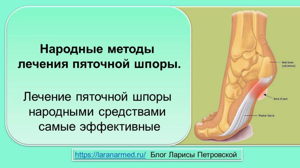 Народные методы лечения пяточной шпоры