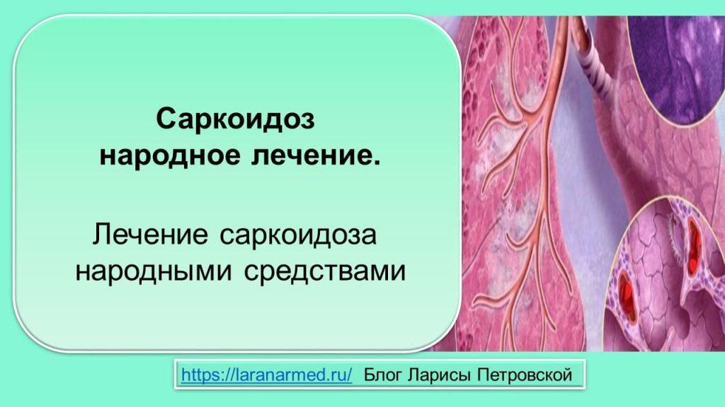 Саркоидоз народное лечение